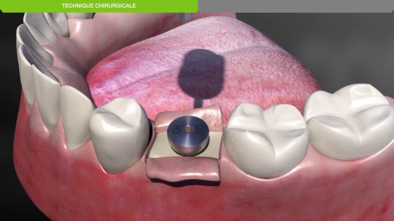 Implant dentaire : Comment faire le diagnostic d'un implant ?