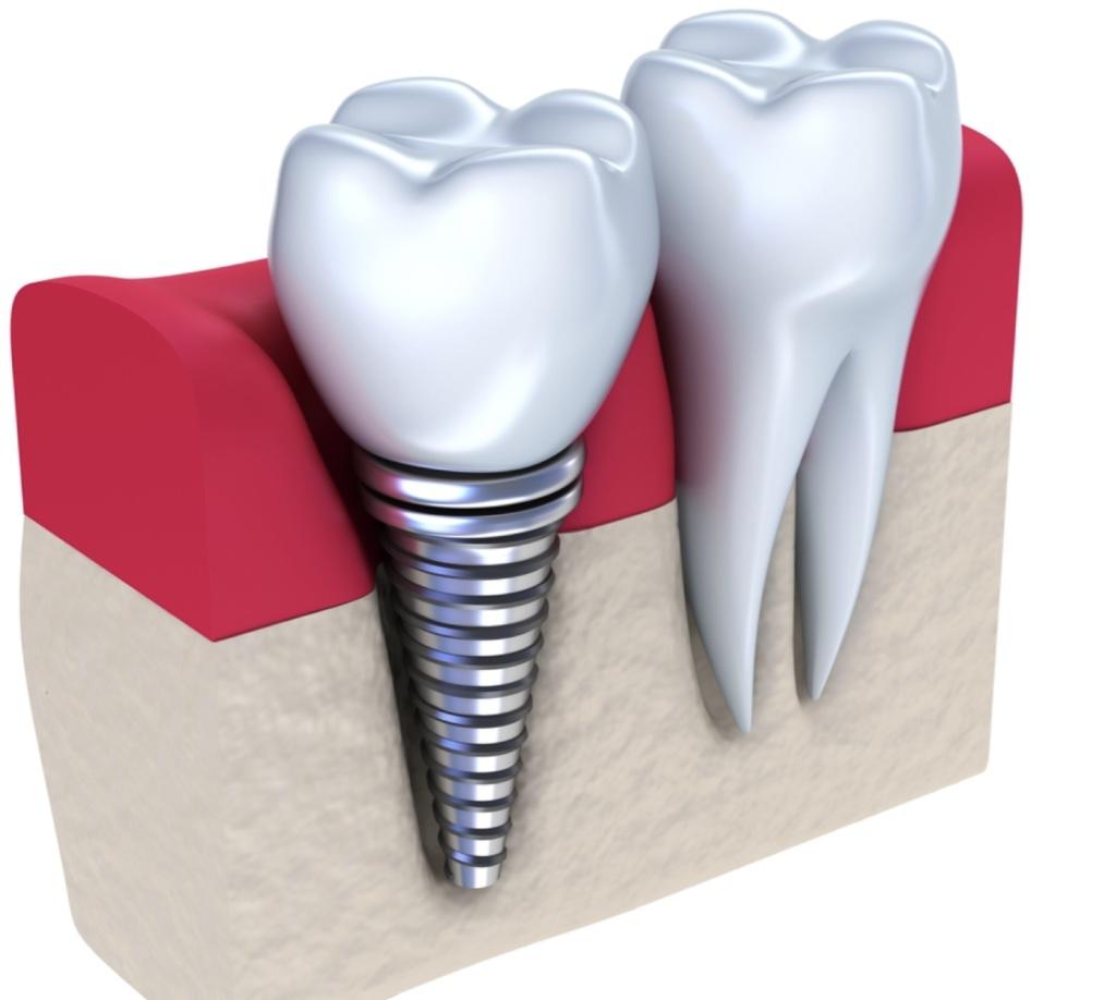 Implant dentaire : Un implant pratique ?